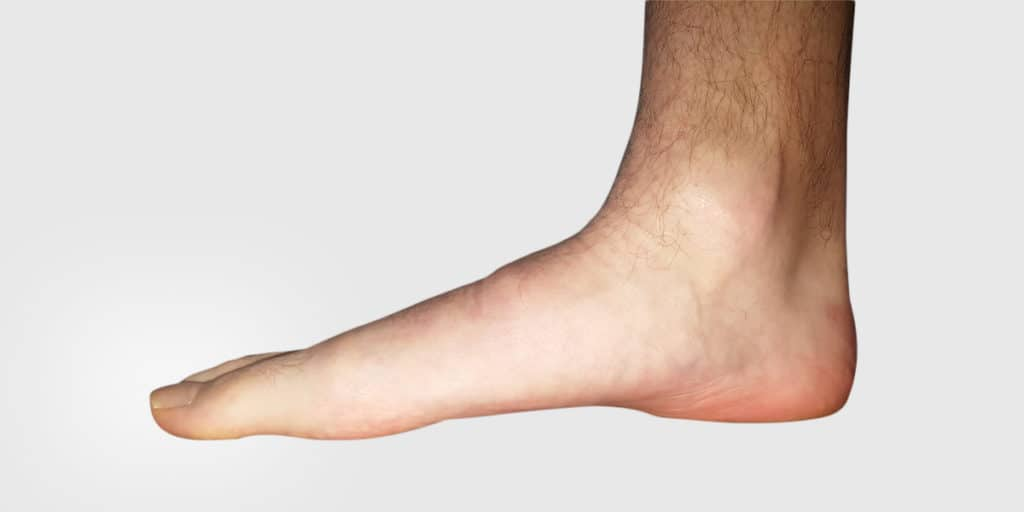 Orthotics – Healthcare or Business - Orthotics – Healthcare or Business? - Gemini Health Group - Richmond Hill Physiotherapy & Wellness - Most Trusted And Respected Provider Of Physiotherapy And Wellness Services In York Region
